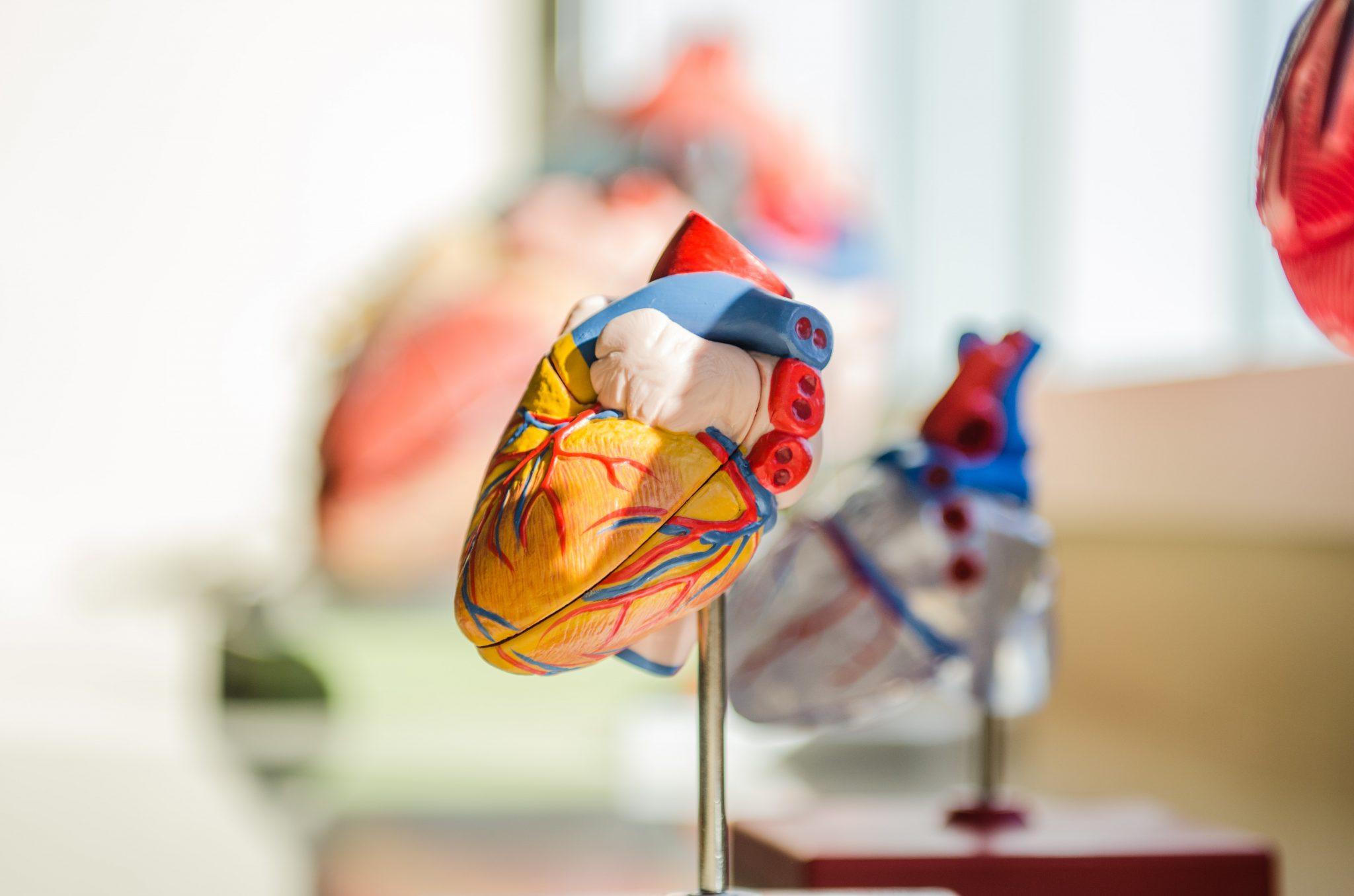 Miokardiális izomhíd – Akár szívinfarktus okozója is lehet