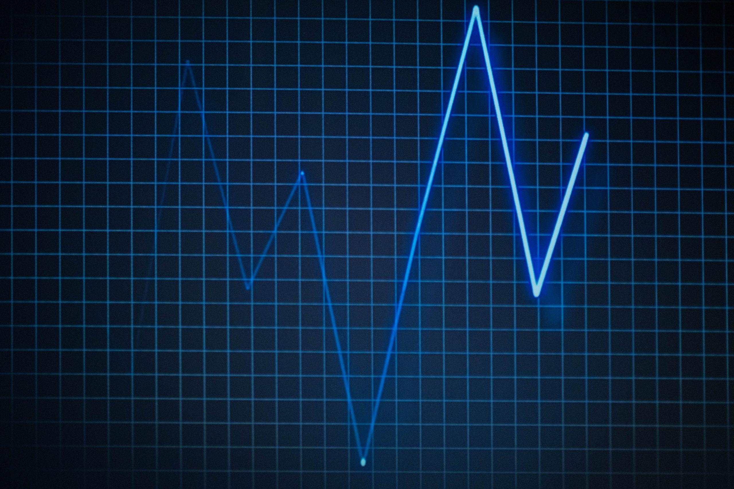 Minden, amit a pulzusról tudni kell